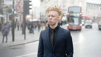 «Я дрался каждый день»: как парень-альбинос из объекта насмешек превратился в востребованную модель