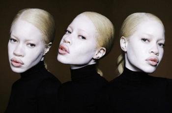 Удивительные факты об альбинизме