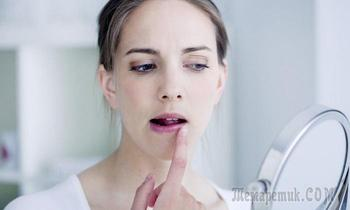 Как себе помочь, если вылезла простуда на губах: 10 копеечных, но эффективных средств