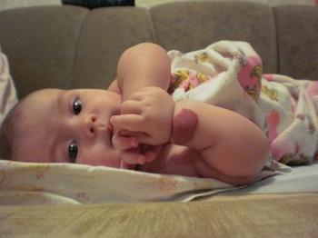 Что нужно знать про родимые пятна у детей