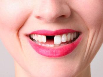 Если вам приснился сон, в котором у вас выпадают зубы