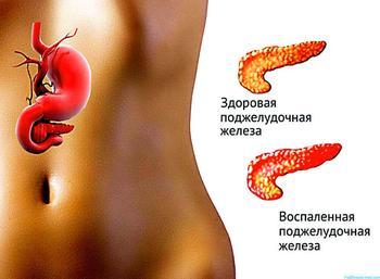 Панкреатит: Простые способы очищения поджелудочной железы