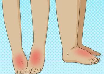 Как снять отечность ног: 12 самых простых советов