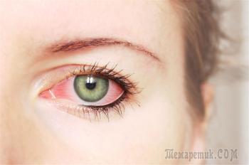 Причин кровоизлияний в глазах