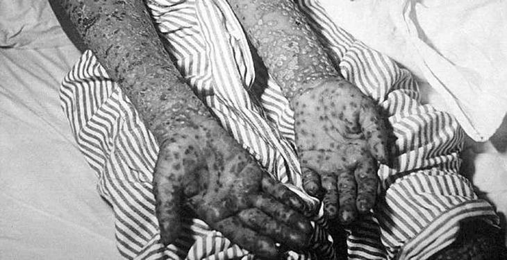 7.  Британцы заразили аборигенов оспой австралия, история, колонизация, факт