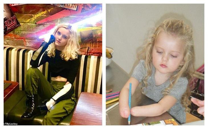 Как 13-летняя девочка с бионическими протезами вместо рук стала профессиональным визажистом