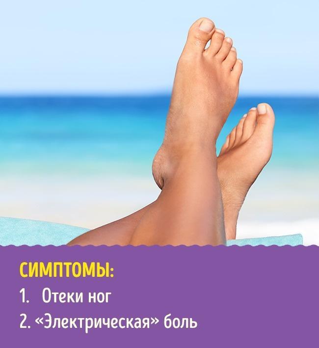 9 проблем с ногами, которые могут говорить о серьезных болезнях
