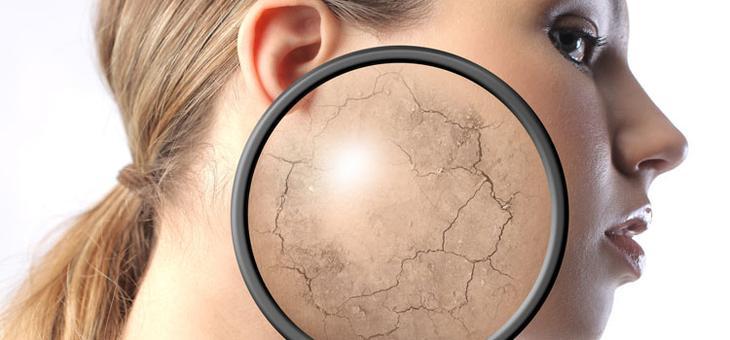 Как помочь сухой коже при помощи глицерина