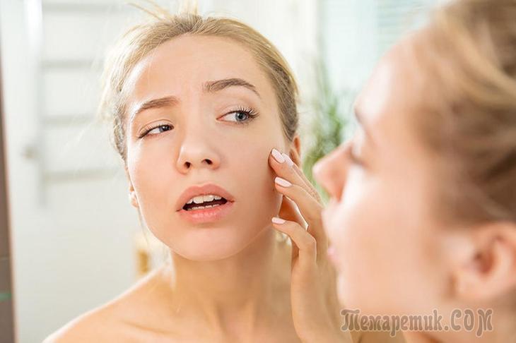 Как избавиться от жирности кожи лица