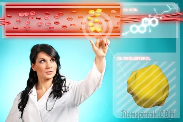 Топ-10 продуктов которые чистят артерии