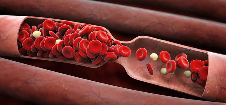 Нормальная вязкость: Натуральные средства для разжижения крови