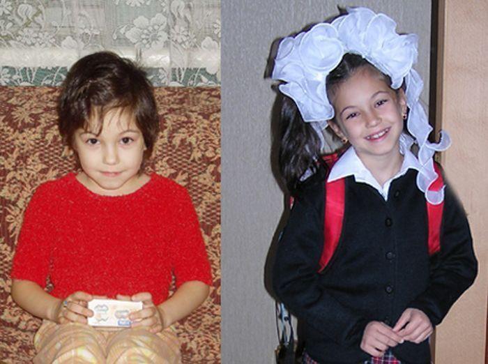 До и после: 30 фотографий детишек в детских домах и в новых семьях