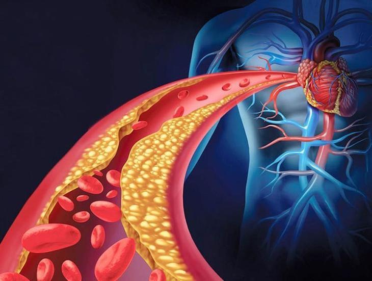 Как почистить артерии с помощью питания