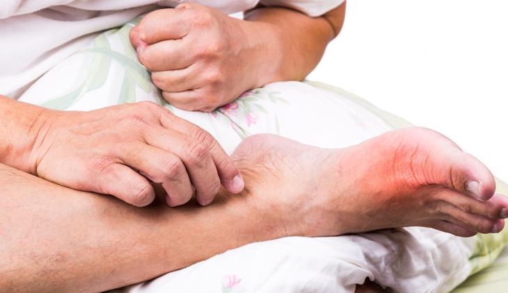 Подагра – одна из причин отечности ног