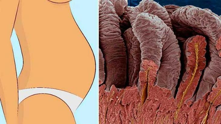 Как вывести 15 тысяч токсинов из кишечника
