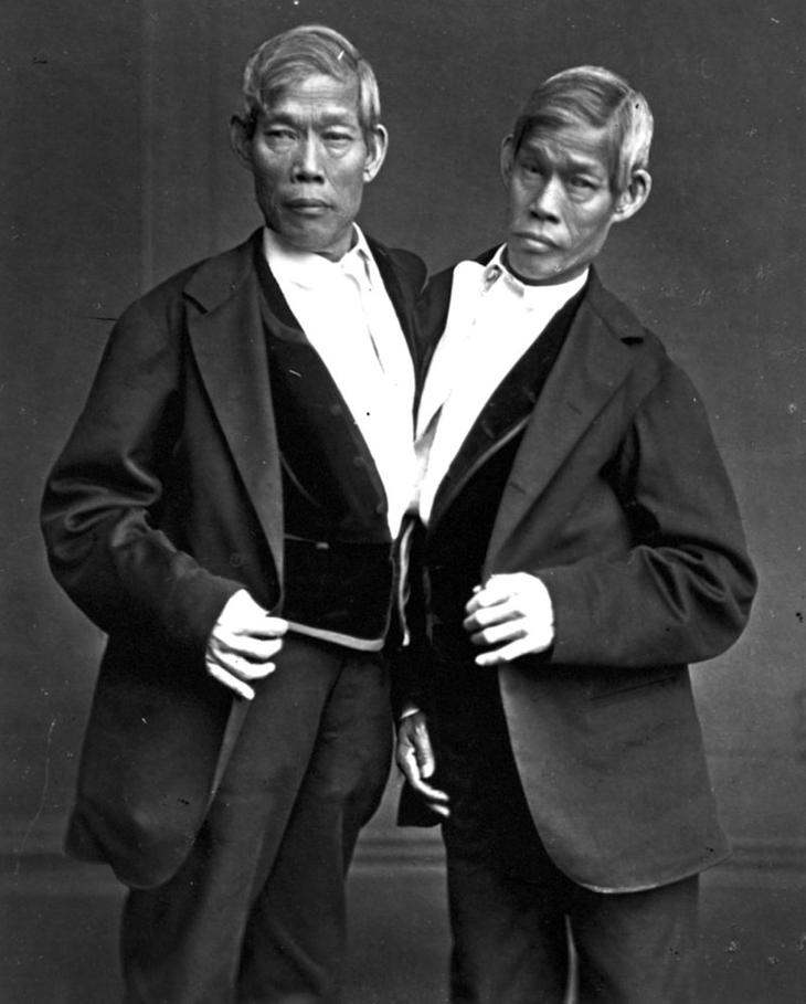 Чанг и Энг Банкер в мире, жизнь, история, люди, медицина, познавательно, сиамские близнецы