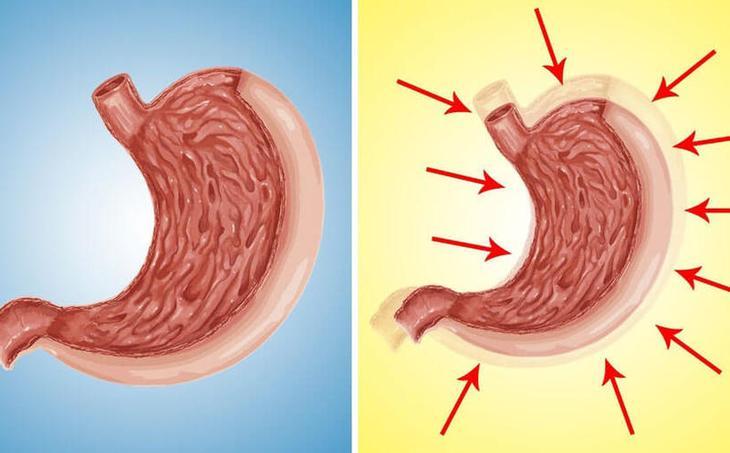 Как уменьшить объем желудка: Проверенные способы
