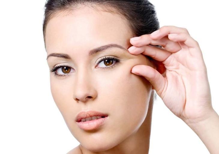 Почему появляются «лучи» в уголках глаз?
