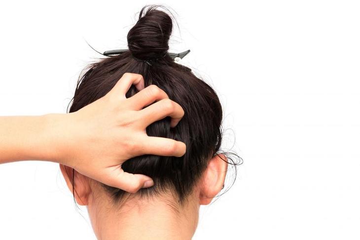Выпадают волосы при себорее