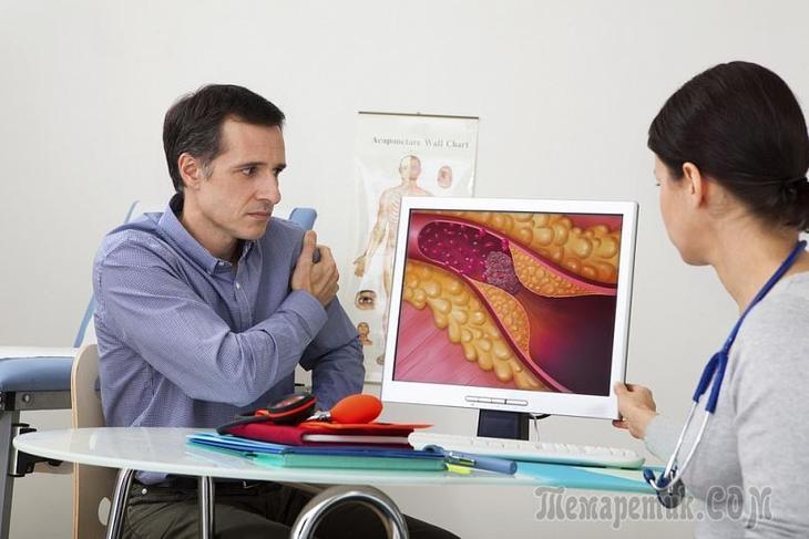 7 мифов о вездесущем холестерине