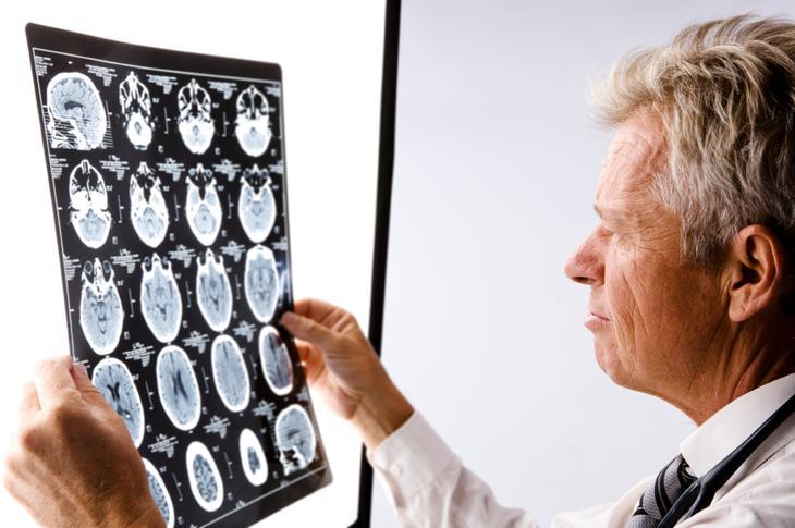 болезнь сосудов головного мозга симптомы и лечение