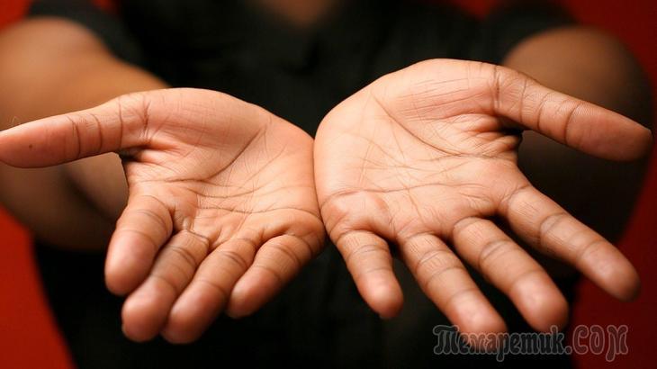 Заболевания о которых могут рассказать ваши руки