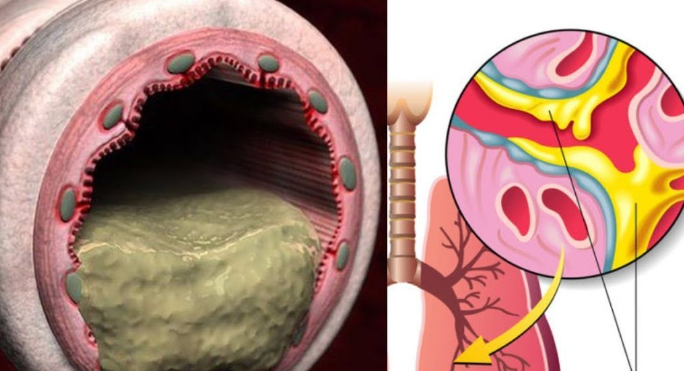Домашние средства, которые выведут мокроту из лёгких и горла