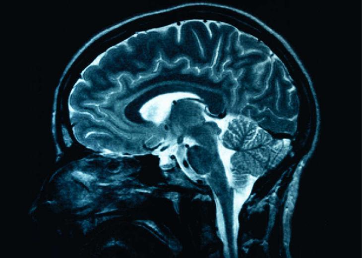 brain06 10 фактов о человеческом мозге