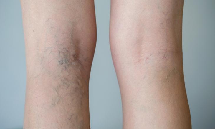 Венозная недостаточность – одна из причин отечности ног