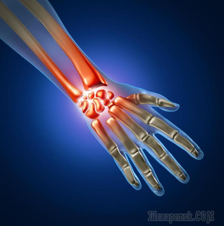 Синдром запястного канала (карпальный туннельный синдром): симптомы и лечение